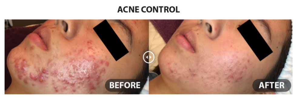 circadia-before-after